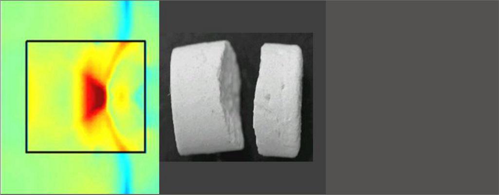 Фрагментация почечных камней с помощью акустических волн